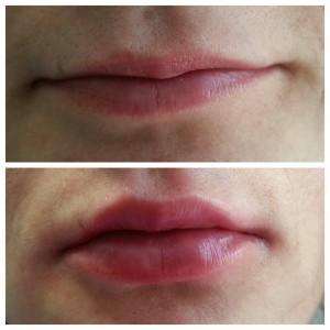 Hijaluronski fileri - korekcija usana pre i posle