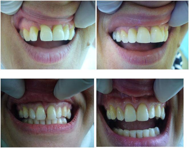 Korekcija razmaka između zuba