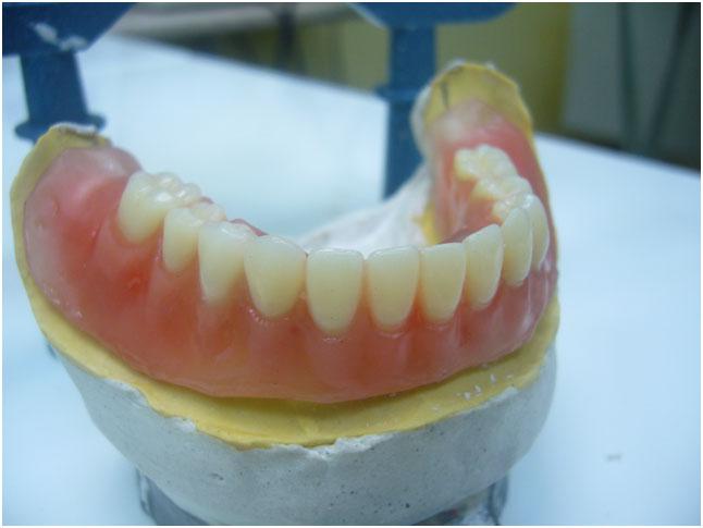 Proteze na implantima