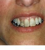Avitalni - mrtvi zubi