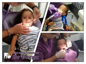 Dečija stomatologija - Pančevo