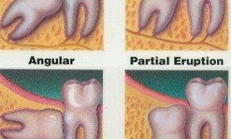 Nepravilan rast zuba
